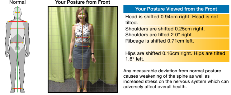 Posture from front