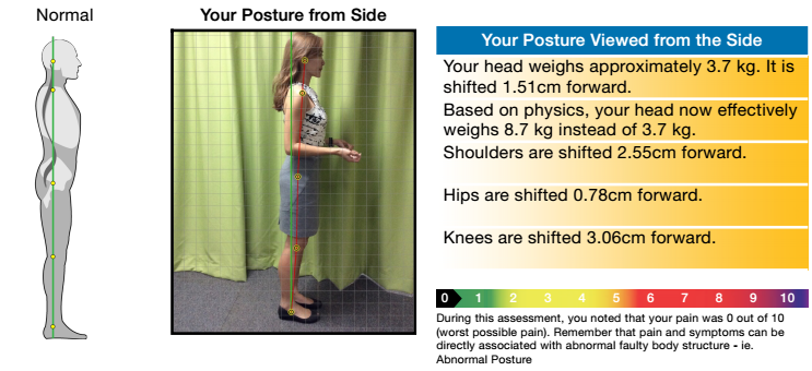 Posture from side