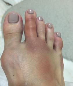 Cheryann's bruised foot